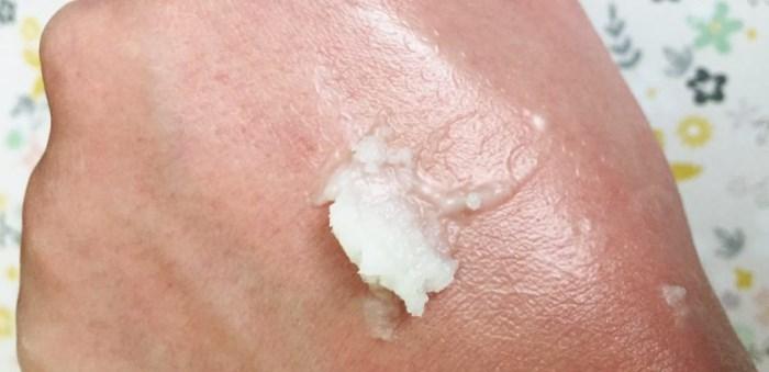 Ногти Пораженные Псориазом Лечение