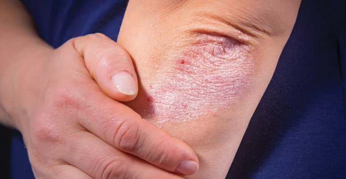 Псориаз Пальцев Рук Лечение
