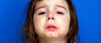 псориаз у детей: причины возникновения