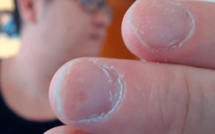 синдром наперстка на ногтях