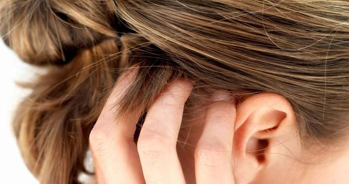 Как выглядит псориаз на голове у ребенка и чем его можно вылечить