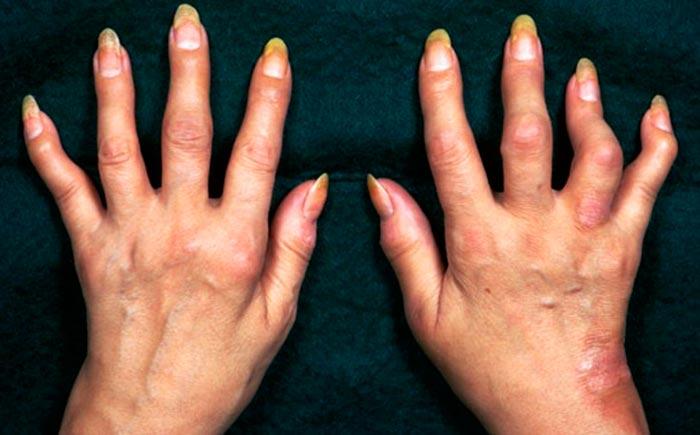 Какие могут быть осложнения при псориазе?