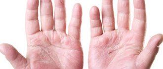 лечение псориаза на руках