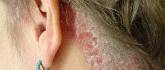 лечение псориаза на голове в домашних условиях