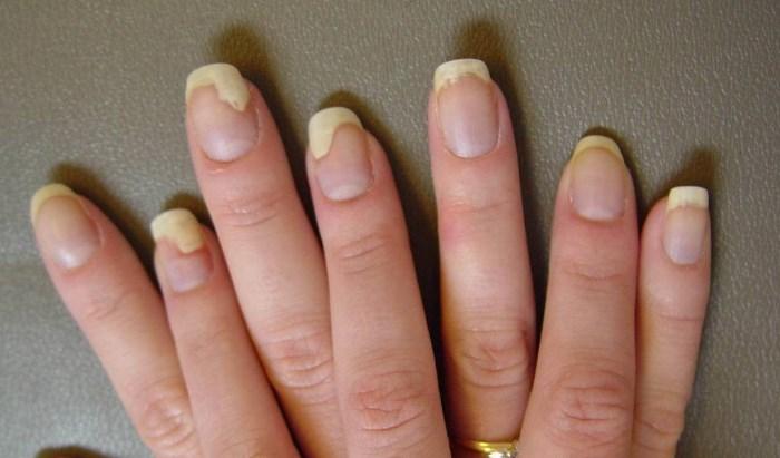 Домашние методы лечения ногтевого псориаза
