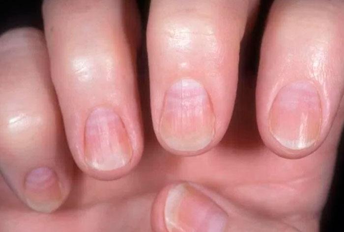 Симптоматика ногтевого псориаза