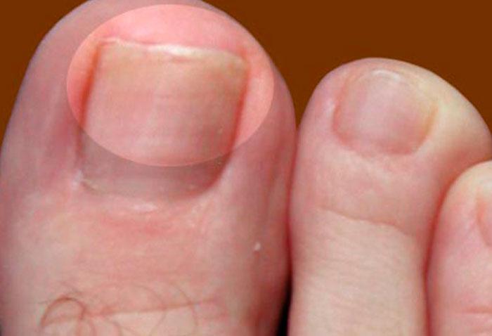 Почему чешутся брови причины зуда как лечить и чем убрать шелушение