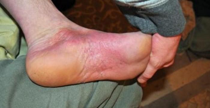 псориаз на ногах