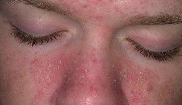 псориаз на лице фото