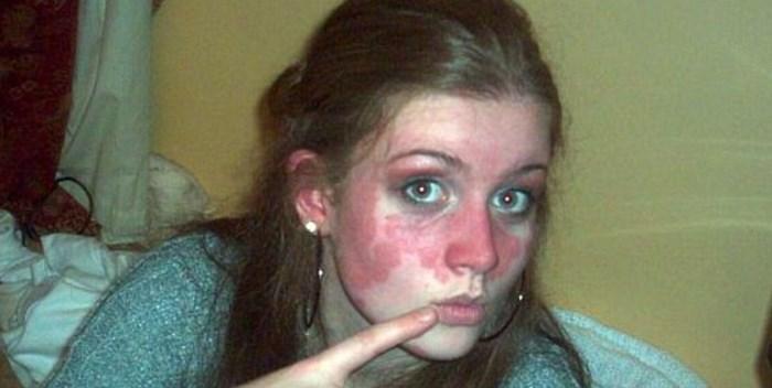 девушка с псориазом на лице