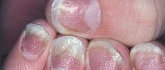 лечение псориаза ногтей в домашних условиях