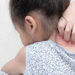 причины возникновения псориаза у детей