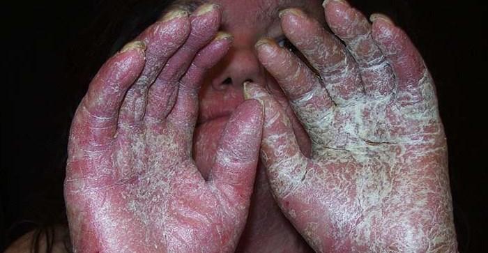 осложнения бляшковидного псориаза