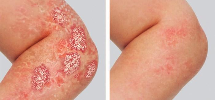 мокнущий псориаз до и после лечения