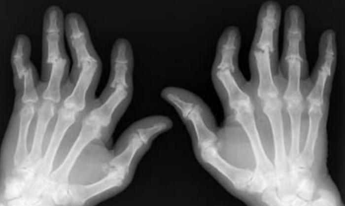 рентген при артропатическом псориазе