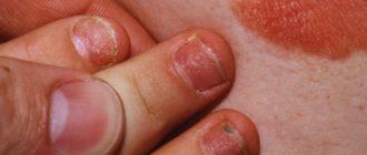 псориаз ногтей у детей