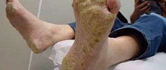 ладонно-подошвенный псориаз