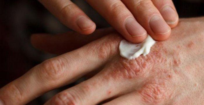 лечение акродерматита аллопо