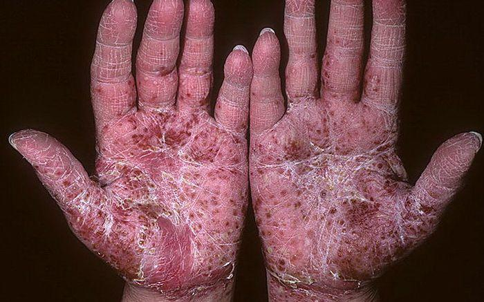 осложнения псориаза