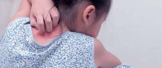 как начинается псориаз у ребенка